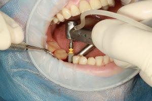 Mieux comprendre l'implantologie et comment en tirer profit